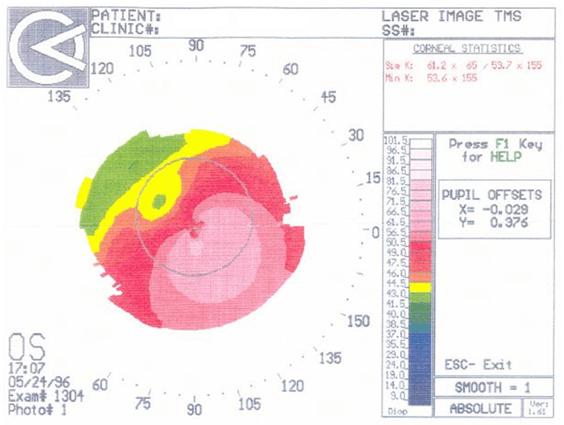 24.05.1996. Снимок, по которому мне поставили диагноз.